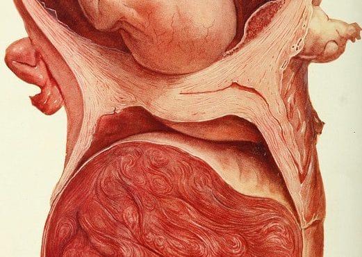 Fibroma y embarazo