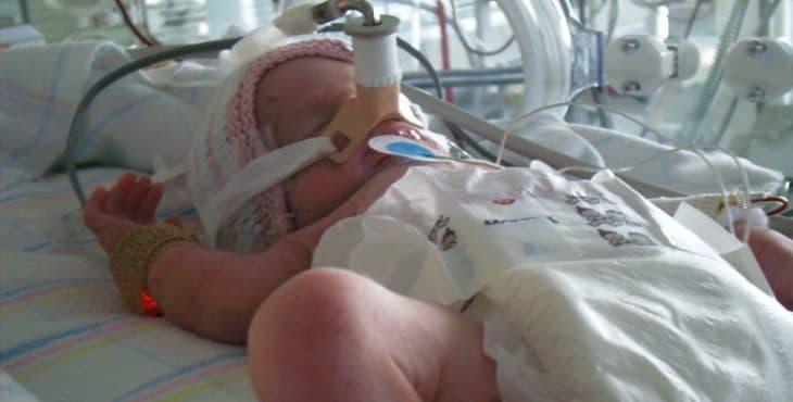 bebé prematuro