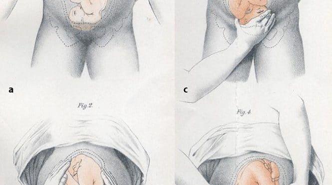 Control y seguimiento del embarazo, una garantía para ti y para tu ...