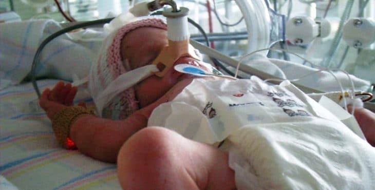Bebé prematuro es muy riesgoso