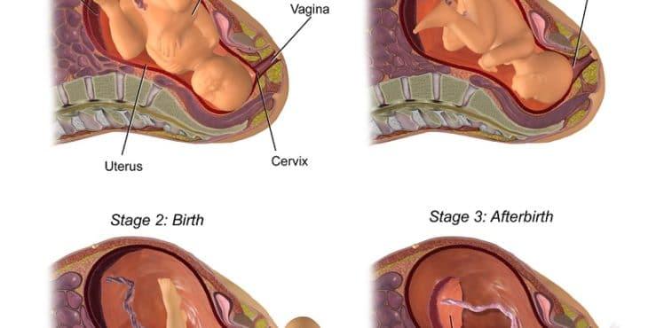 Etapas del parto