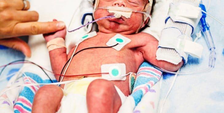 Bebé en cuidados intensivos