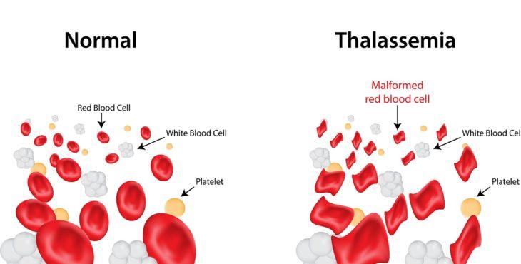 Glóbulos rojos en la talasemia