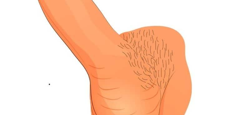 Cuando la infección crea un anillo alrededor del glande