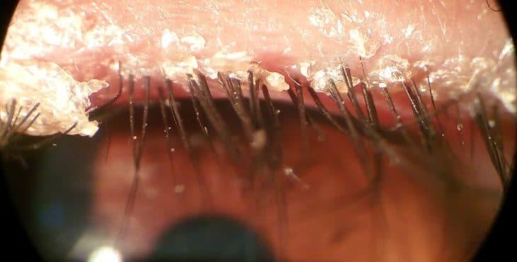 Ojo afectado por blefaritis