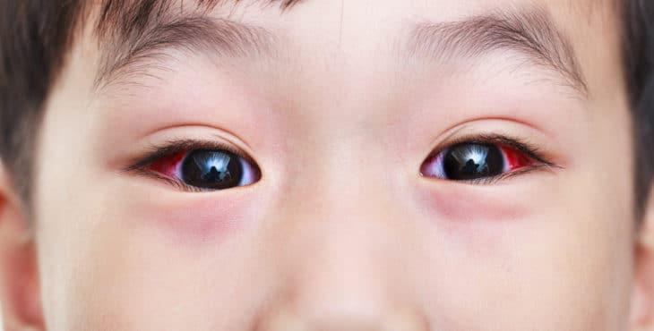 Niño con conjuntivitis