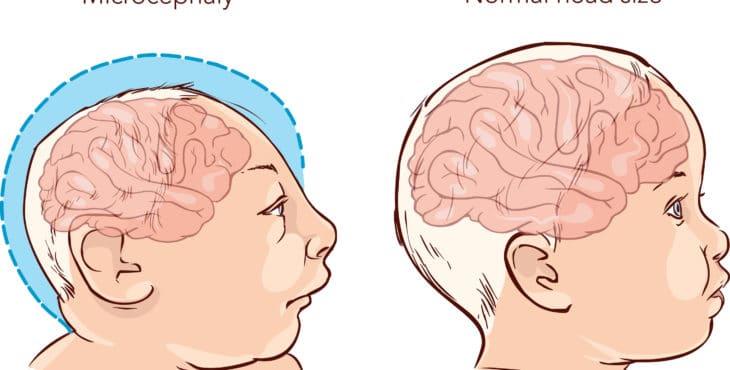 Aspectos relevantes del síndrome de Edwards