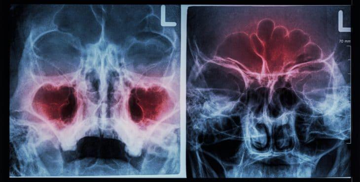 Rayos x del seno maxilar y seno frontal
