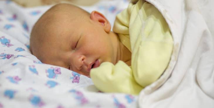 Bebé con color amarillo