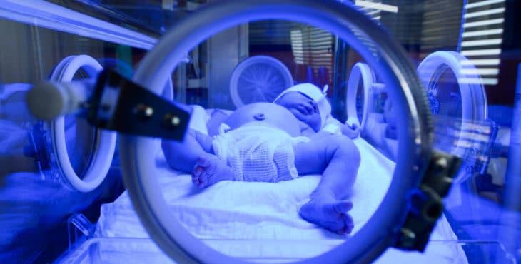 Recién nacido bajo luz ultravioleta en la incubadora