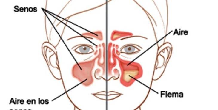 La sinusitis en niños