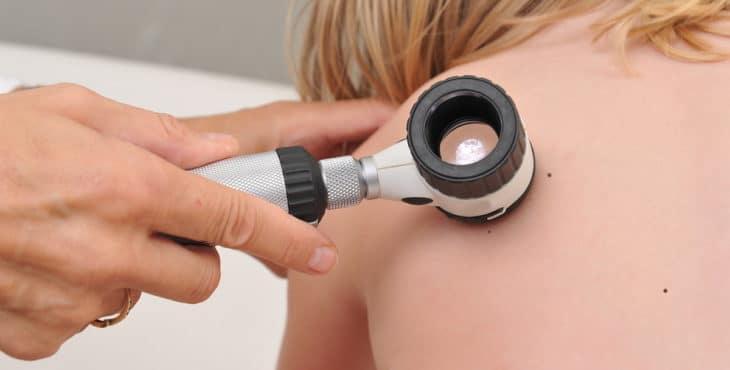Dermatoscopio en un niño