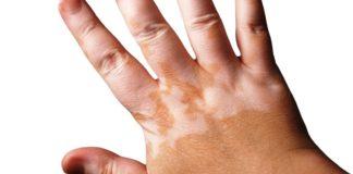 Lesión típica de vitiligo