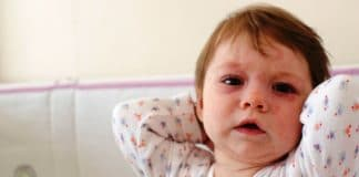 roséola El cuerpo de la niña cubierta de la Sexta enfermedad