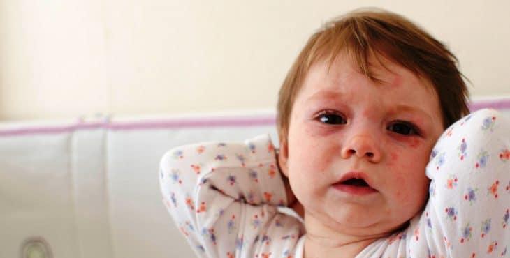 El cuerpo de la niña cubierta de la Sexta enfermedad