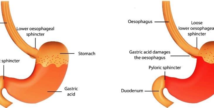 Enfermedad del reflujo gastroesofágico