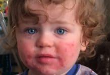 Niño con Quinta enfermedad